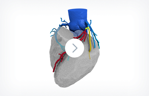 A dark grey anatomical heart graphic with coloured vessels around it with a play button overlay indicating a link to click to watch a video